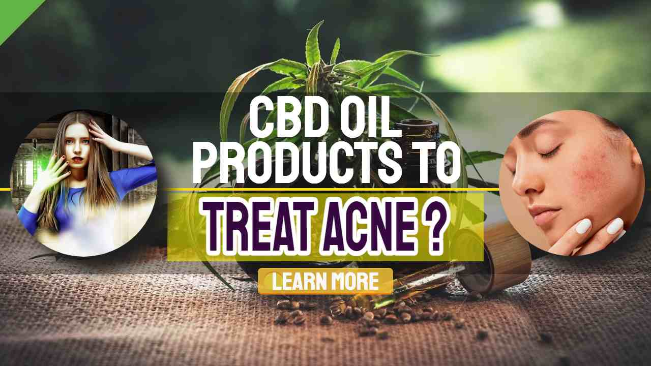 """Image text: """"CBD Oil Products to Treat Acne""""."""